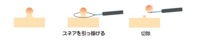 コールドポリペクトミー